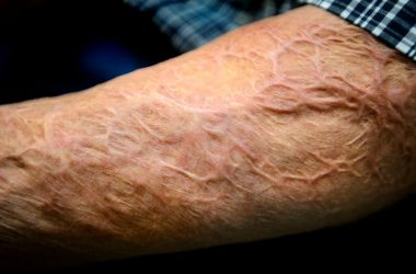 طرق العناية بالجلد المحترق